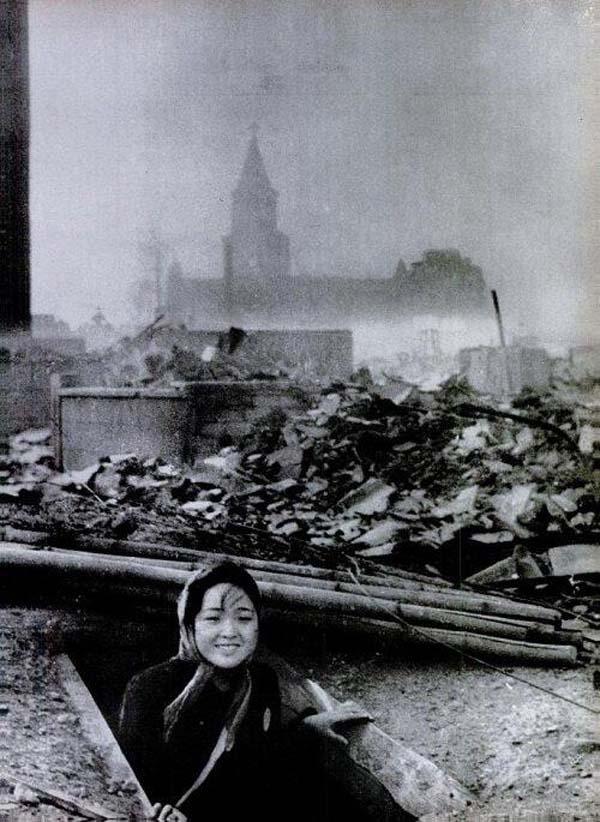 30.)在长崎爆炸案(1945年)中幸存下来的一名妇女。