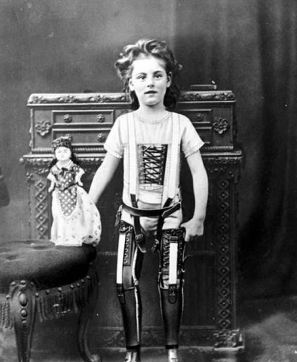 16.)一个有假腿的孩子(1898)。
