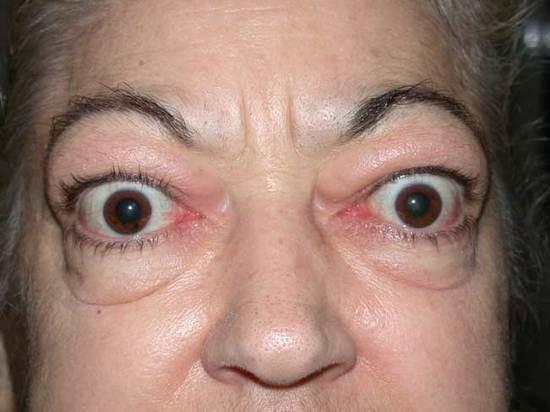 Proptose é uma condição comum em raças curtas de cães (como os pugs), mas também pode ocorrer em humanos. Faz com que os olhos sejam deslocados demasiado para a frente.