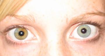 Pupula duplex pode não estar bem documentada (ou real), mas aqui estão o número de condições que as pessoas têm. Por exemplo, heterocromia iridum, que causa uma coloração separada da íris.