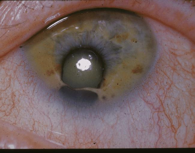 O horripilante coloboma é um defeito de nascença que provoca um buraco na íris. A maioria das pessoas que sofrem de coloboma também são cegas.