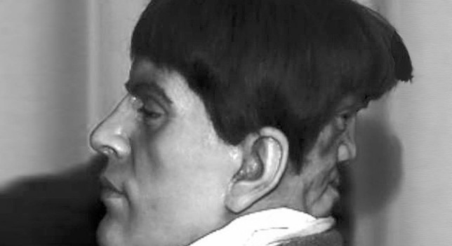 Edward Mordrake was born with a second face attached to the back of his head. The second face couldn't speak, but could laugh and cry separately from Edward's emotions...
