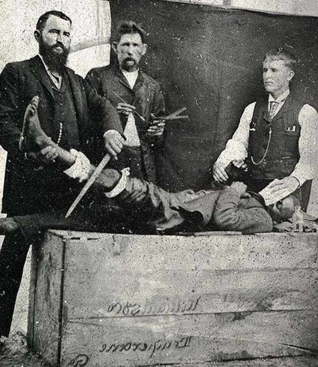 Here's a photograph of one of the first surgeries performed using ether as an anesthetic.