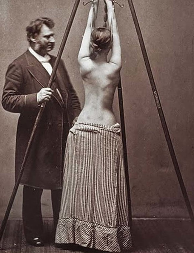 This isn't a scene from 50 Shades Of Grey --- it's actually how they used to treat scoliosis.