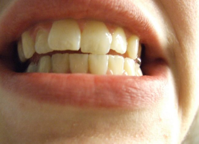 Humans are the only primates whose tooth size decreases as brain size increases.