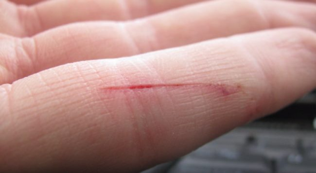 Here's Why Tiny Paper Cuts Make Your Finger Feel Like It's Going To Fall  Off – ViralNova