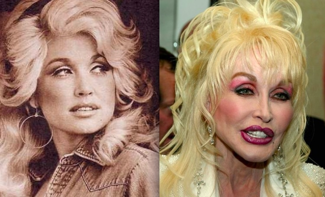 Dolly Parton might be more plastic than human at this point.